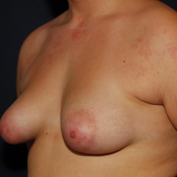 Tubular Breasts Pre-op