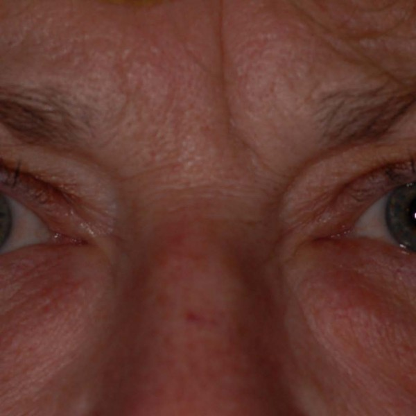 Eyebag Removal Pre-op