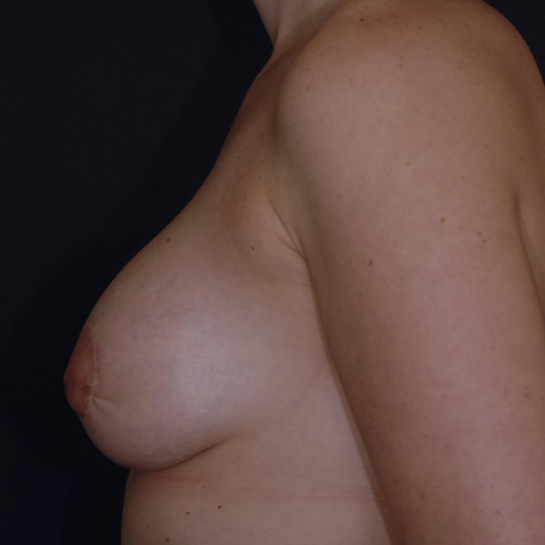 Mastopexy with implants Post-op