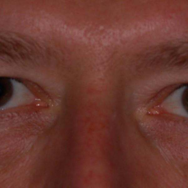 Upper eye-lid Pre-op