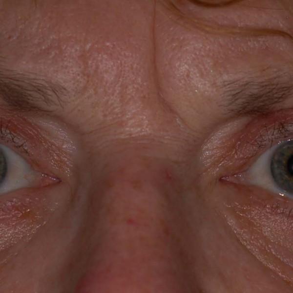 Eyebag Removal Post-op