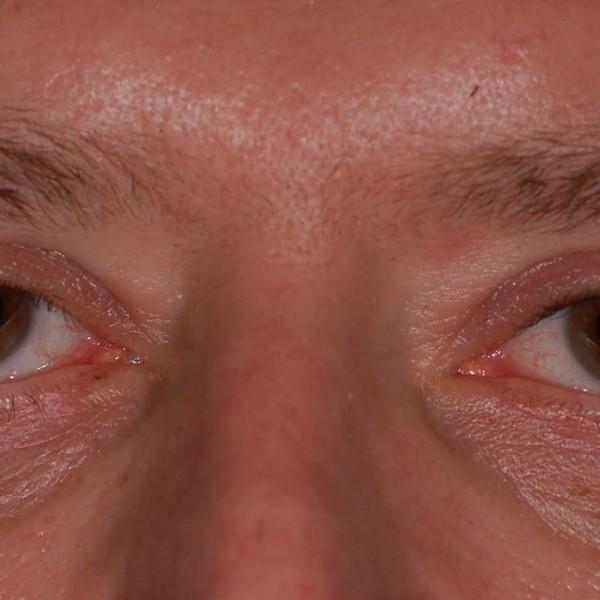 Upper eye-lid Post-op